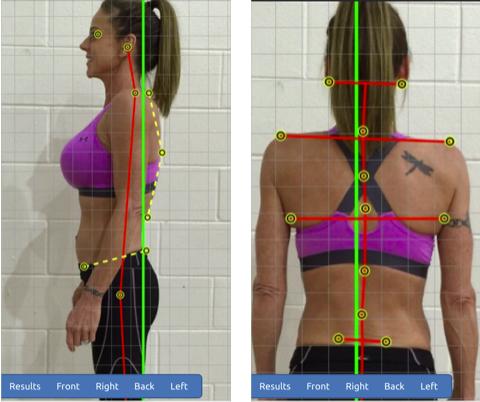 valutazione posturale digitale